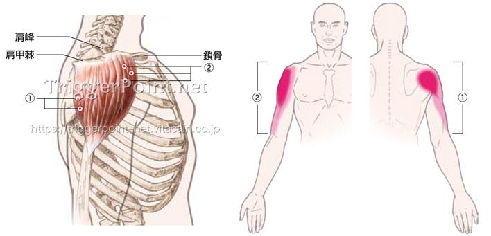 三角筋|肩部|好発部位について | Trigger Point.net (トリガー ...
